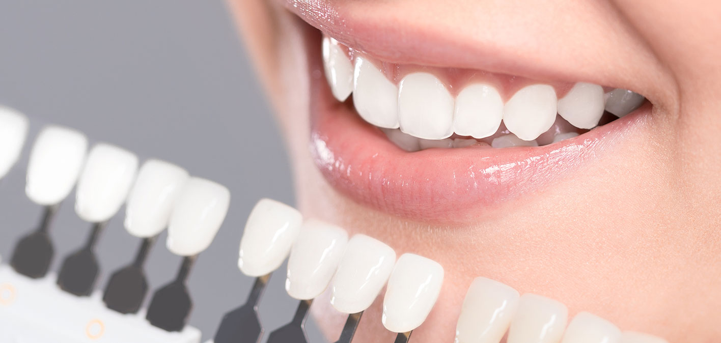 Teeth Whitening In Mississauga Dr Neil J Gajjar Dentistry And